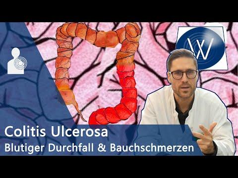 Der Darm: Colitis Ulcerosa😱Bauchschmerz & schleimiger blutiger Durchfall? Chronische Darmerkrankung