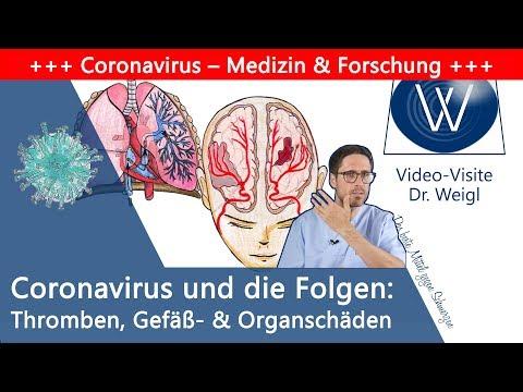 Folgen von Covid-19: Darum versterben Patienten - Neue Erkenntnisse über Thrombosen & Organversagen