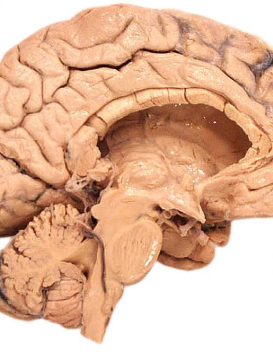 AI kann Alzheimer 10 Jahre nachweisen, bevor Symptome auftauchen