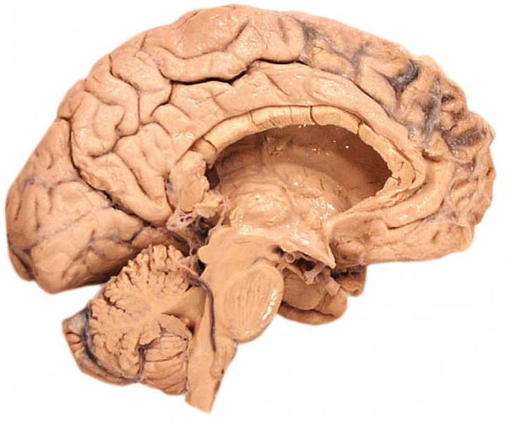 Sind männliche und weibliche Gehirne unterschiedlich?