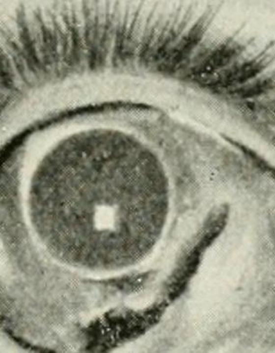 Spielzeugpistolen können zu schweren Augenverletzungen führen, warnen Ärzte