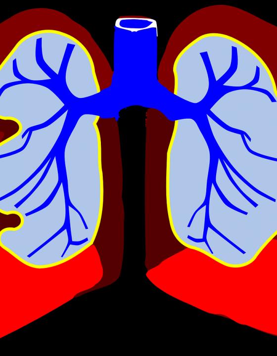 Lungenkrebs: Röntgenuntersuchung versagt bei 25 Prozent aller Krankheitsfälle