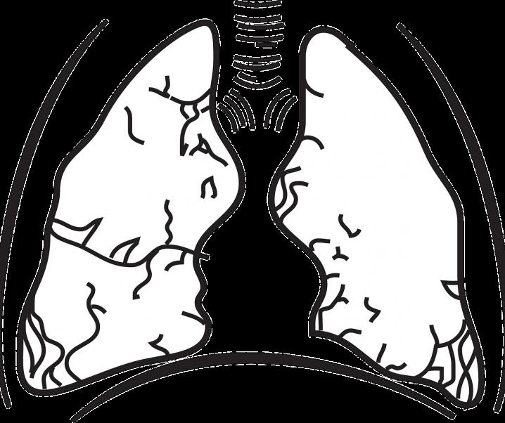 Revolution in der Therapie von fortgeschrittenem Lungenkrebs
