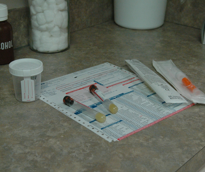 Einfacher Urintest für den Heimgebrauch kündigt Prostatakrebs an
