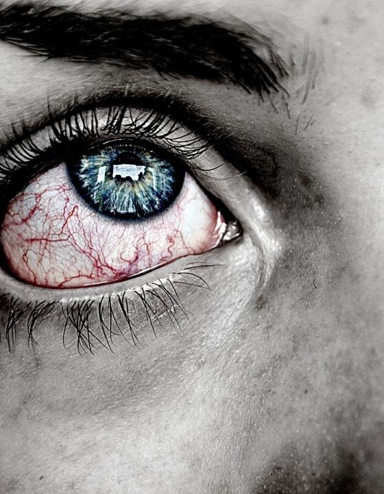 Augengrippe: Das macht sie so gefährlich