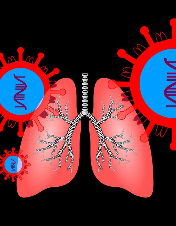 Covid-19 verursacht andere Lungenschäden als die Grippe