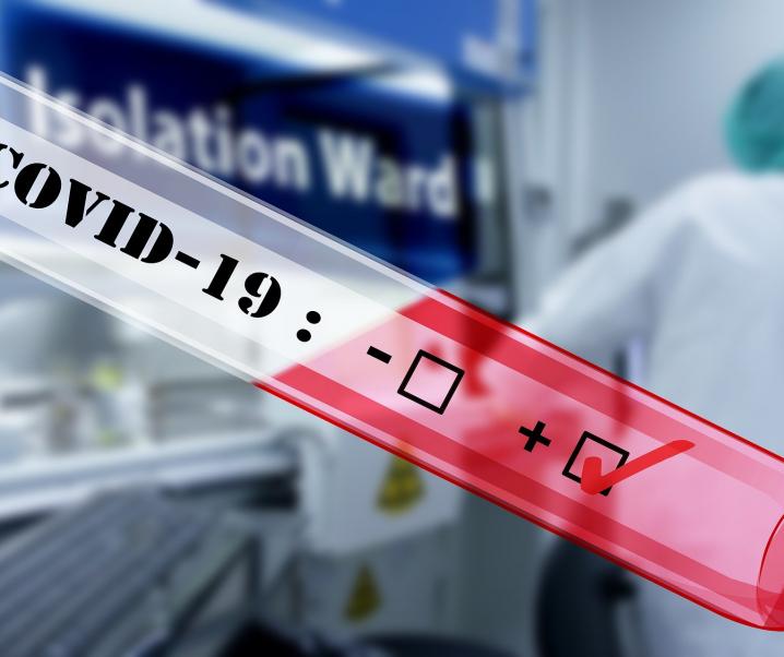 Nierenwerte können als Prognose von Covid-19-Verlauf dienen