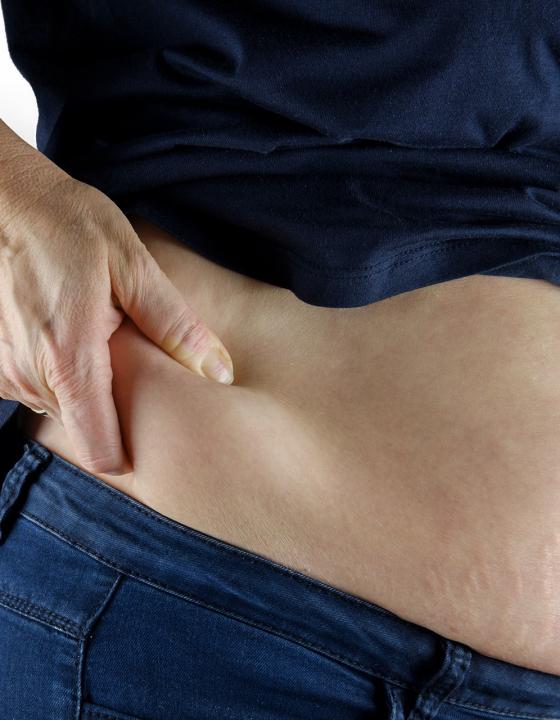 Dick oder dünn? Insulinsensitivität bestimmt den Bauchumfang