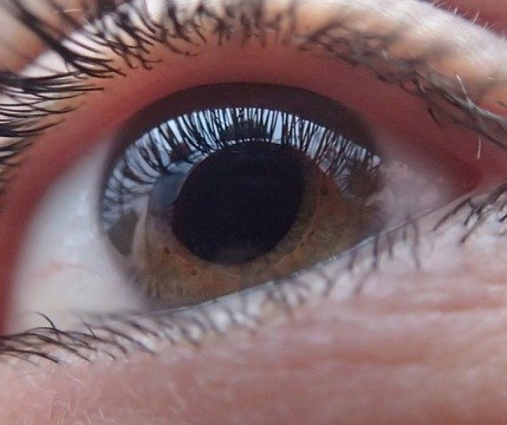 Grüner Star: Sport senkt das Glaukom-Risiko