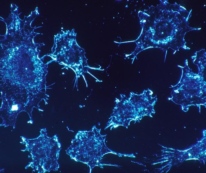 Fortschritt in der Krebsforschung: Fettsäure tötet Krebszellen