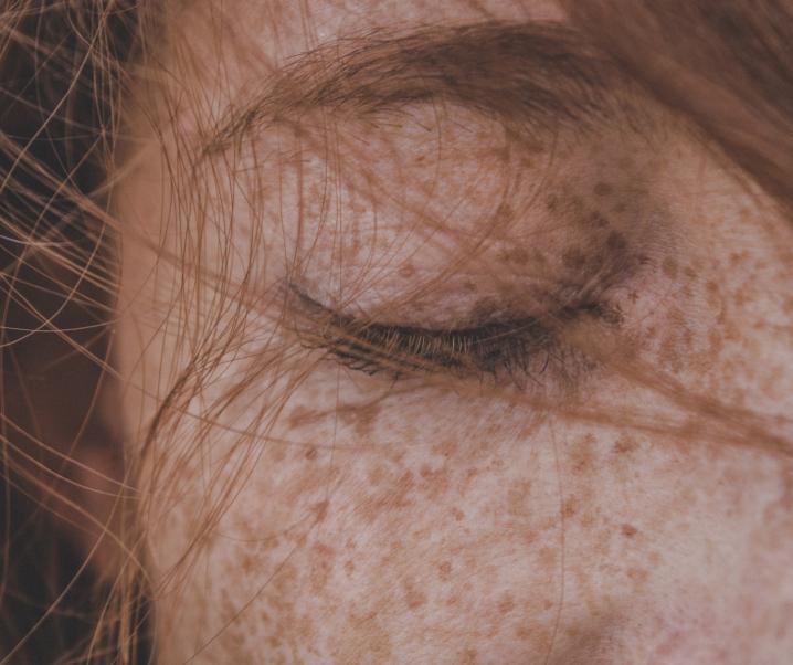 Sommersprossen – warum haben wir sie und verschwinden sie wieder?