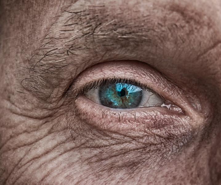 Diese Faktoren beschleunigen die Hautalterung