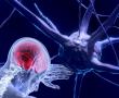 Flavonoide: Die unterschätzte Waffe im Kampf gegen Alzheimer