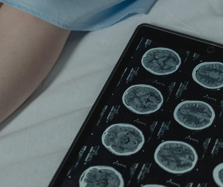Neuer Forschungsansatz: Mit Durchfallmittel den Krebs besiegen?