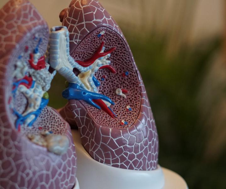 Wenn es vermeintlich in der Lunge schmerzt