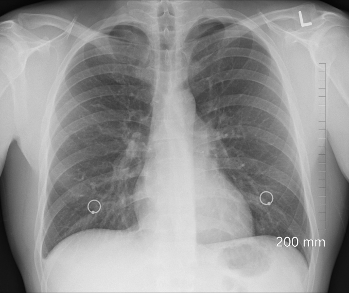 Neue Krebstherapie: Mit Elektrospray gegen Lungentumore