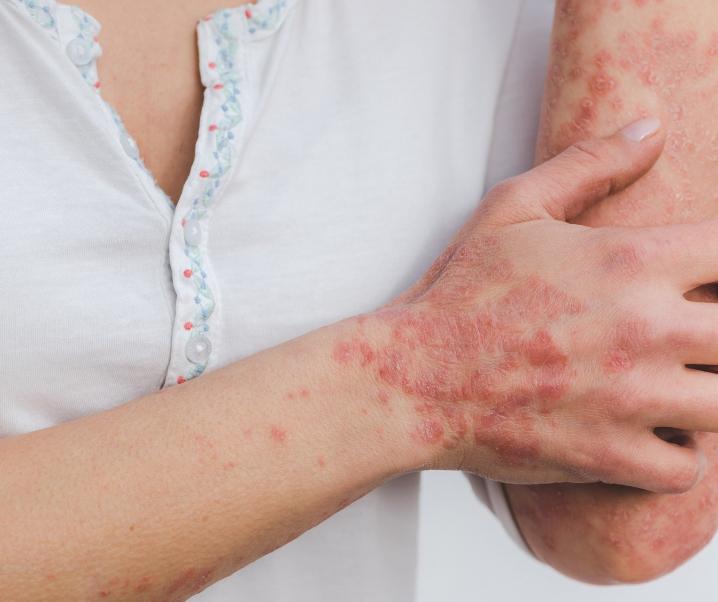 Schuppenflechte und Neurodermitis: Können systemische Medikamente helfen?