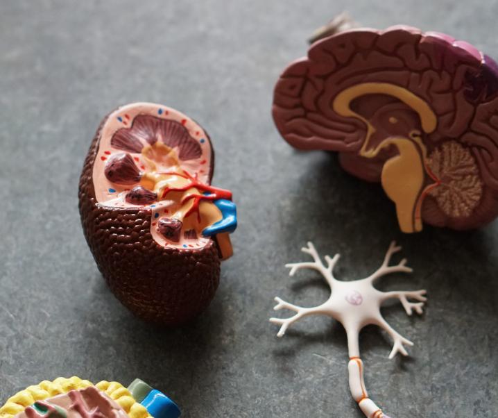 Alzheimer: Vier neue Subtypen entdeckt