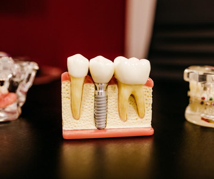 Gebisslose Demenz? Kognitiver Verfall hängt mit Zahnverlust zusammen