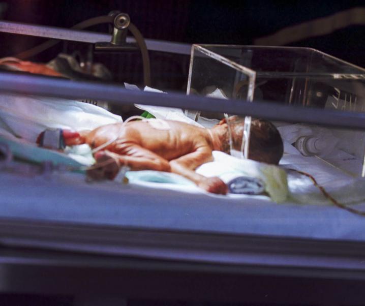 Bald kein Platz für Babys: RSV-Infektionen lassen Schweizer Krankenhäuser verzweifeln