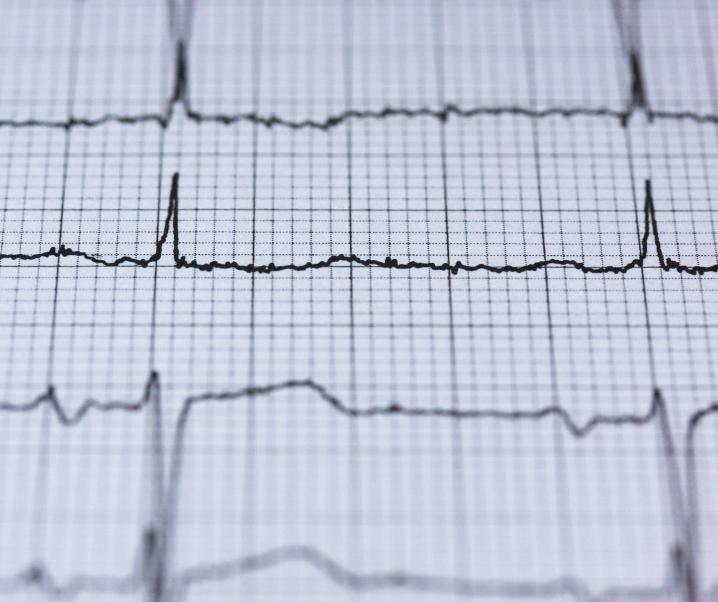 Neuer Ansatz zur Behandlung von Herz-Kreislauf-Erkrankungen