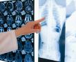 Nach Covid-19: Droht uns eine Welle von Autoimmunerkrankungen?